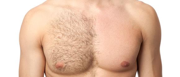 depilácia muž