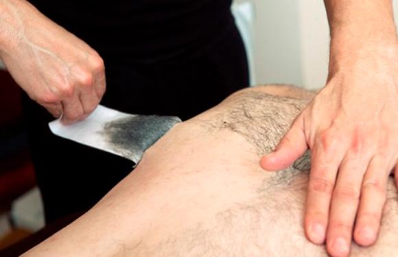 depilacia chrbát