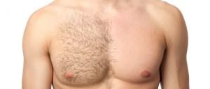cukrova-depilacia-muzi-hrudnik