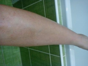 noha-po-depilácii-cukrovou-pastou