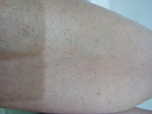noha-pred-depiláciou-cukrovou-pastou